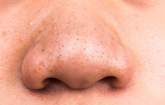 Ask Dr. Pimple Popper: 'How Do I Get Rid Of My Disgusting Blackheads?'