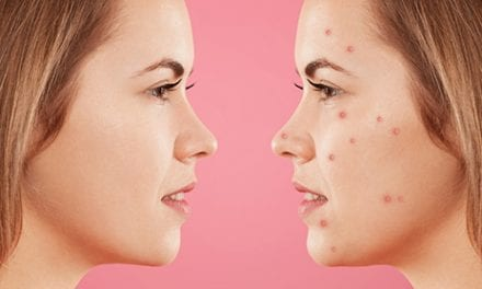 Spironolactone for Hormonal Acne