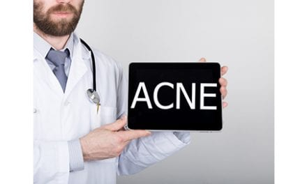 The Best and Worst of Light Therapies for Acne