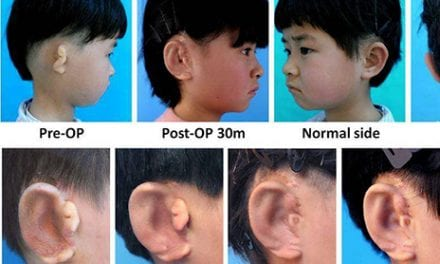 Children Receive New Ears Grown from Their Own Cells in World First