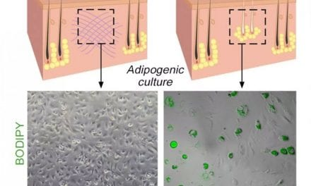 A New Discovery About Human Skin Could Help Us Eliminate Scarring