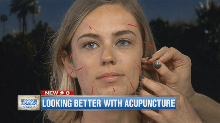 No Filter Needed – Enhance Your Allure with Cosmetic Acupuncture