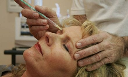 Everything You Need to Know About Botox Before You Try It