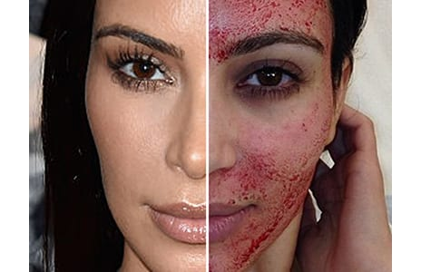 9 Bizarre Beauty Treatments Celebrities Have Done to Make Themselves Look Younger