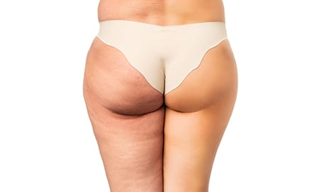 Z Wave for Cellulite Treatment