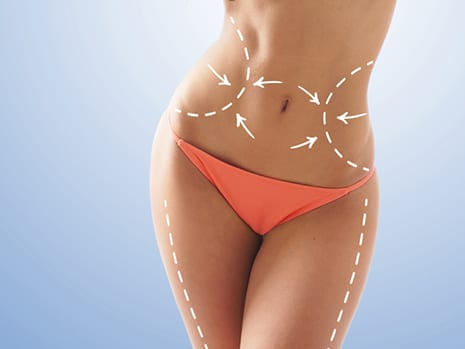 Are You a Good Candidate for Liposuction?