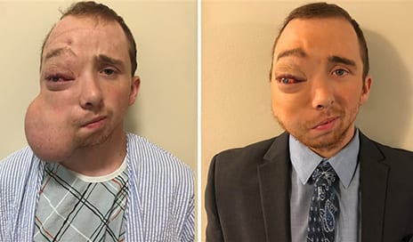 Man with Face Tumor Has 'Life-Changing' Surgery After Strangers Rally to Help