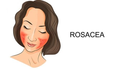 Rosacea Skin Care Tips from Dermatologists
