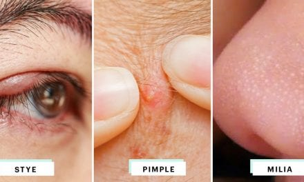 How to Identify Styes, Milia, and Pimples