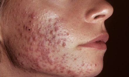 Hormonal Antiandrogen Therapy for Acne May Help Reduce Antibiotic Use