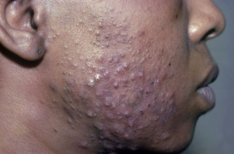 Microneedling to Treat Acne Scars in Patients With Dark Skin Color