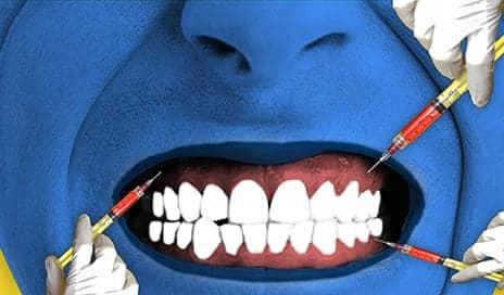 Can Botox Ease Teeth Grinding?