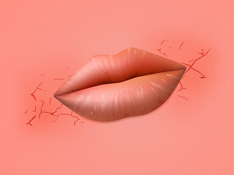 Why Do the Corners of My Mouth Crack—and How Do I Fix It?