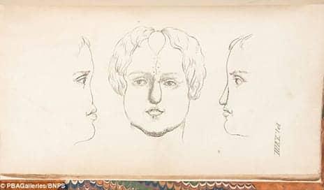Rare Book Reveals How Pioneering Plastic Surgeon Achieved Mastery of Rhinoplasty 185 Years Ago