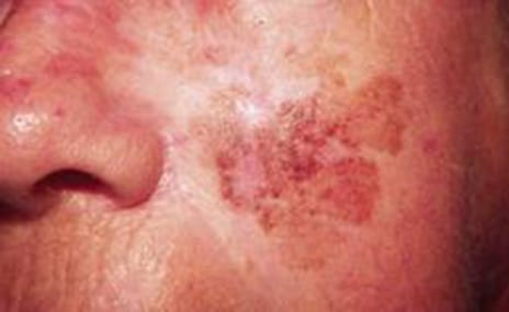 How Plastic Surgeons Are Advancing Skin Cancer Treatment