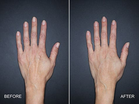 Nestlé Skin Health Announces the FDA Approval of Restylane Lyft for Hands