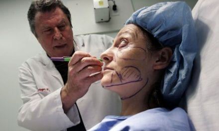 Allergan May Need More Than a Facelift