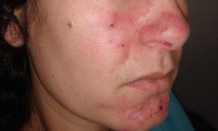 The Psychosocial Impact of Rosacea: Should Dermatologists Be Concerned?
