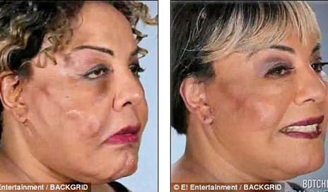Transgender Activist Who Had Cement Fillers Injected Into Her Face Reveals Her Astonishing Transformation After Her Third Corrective Surgery