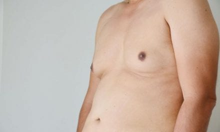 Why So Many Guys Are Getting Breast Reduction Surgery