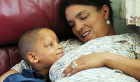 Bringing a Smile to Boy, 6, Through Skull Surgery