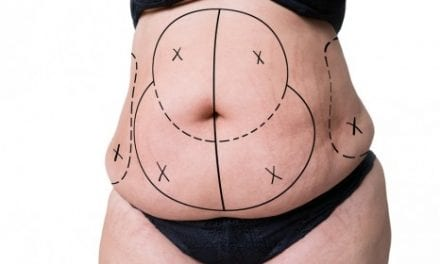 A Paradigm Shift for Treating Unwanted Fat