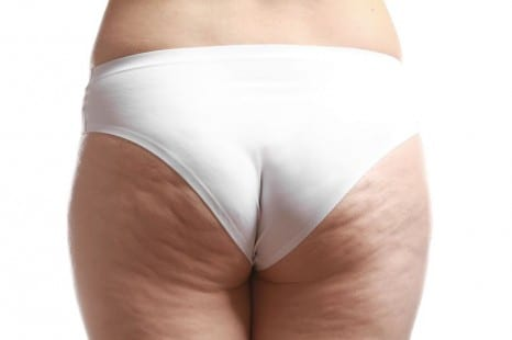 How to Get Rid of Cellulite and Banish 'Orange Peel' Skin