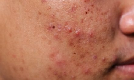 10 of Your Most Burning Questions About Accutane, Answered By Dermatologists