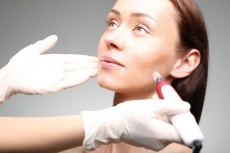 Doctors Are Seeing an Influx of Deformities From Bad Microneedling Jobs