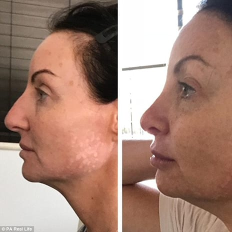 Mother, 40, Whose $19K Nose Job Left Her with a Discolored 'Beak' Reveals How She Used Leeches to Restore It to Normal
