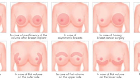 Researchers Explore Limitations of Patient-Specific, 3D Printed Guides for Breast Surgery