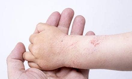 Gaps in Pediatric Atopic Dermatitis Treatment