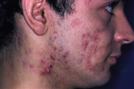 Expert Roundtable: Ethical Issues in Acne Care for Transgender Patients