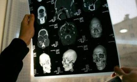 Face Transplantation Edges Toward Mainstream Medicine. Insurance Should Cover It