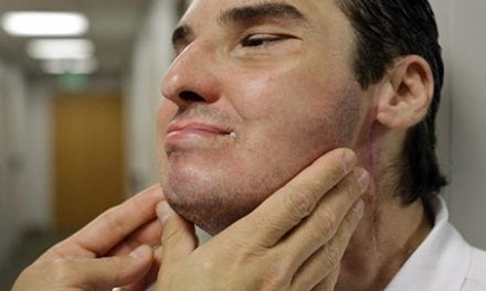 Chicago Surgeon On Face Transplants: 'They Are a Very, Very Precious Commodity'