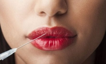 In a World Full of Fillers, Here's How to Look Like Yourself