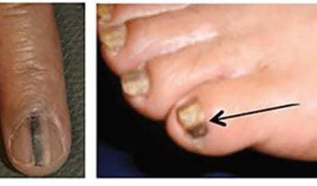 Nail Cancer Is Real, Miss Illinois Karolina Jasko Had This Type Of Melanoma