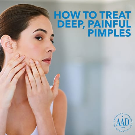 American Academy of Dermatology's Advice to Patients with Pimples