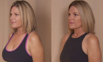 California Mom of 3 Turns to Plastic Surgery to Remove Breast Implants: 'It's a Whole New World'