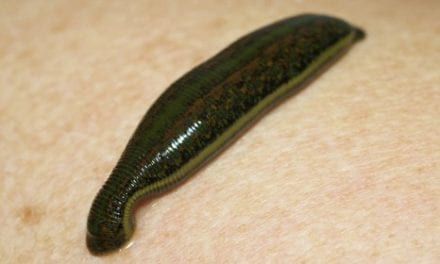 When Leeches Are Used in Modern Medicine: Have We Turned Back Time?