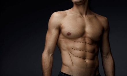 Why Guys Are Getting Butt and Chest Implants