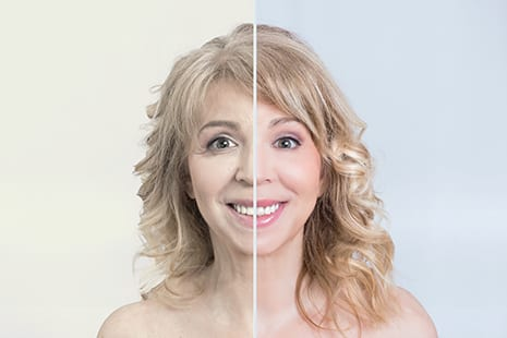 The Two Faces of Botulinum Toxin