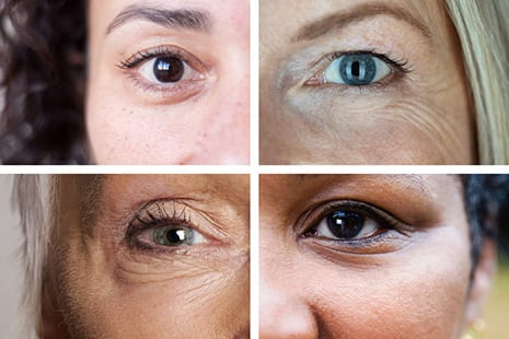 The Fix for Dark Circles, Bags and Droopy Lids