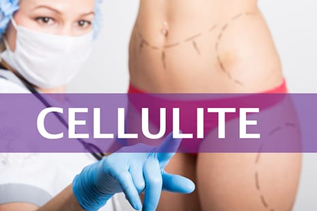 Cellulite Severity Perception and Measurement Data Presented at ADSD Meeting