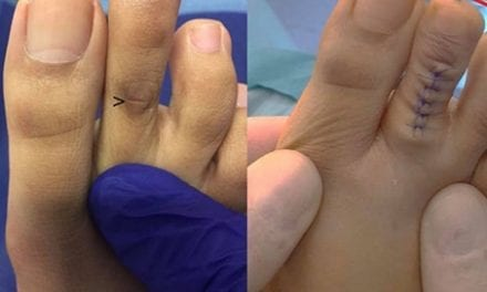 Thousands Of People Are Getting 'Cinderella Surgery' On Their Toes
