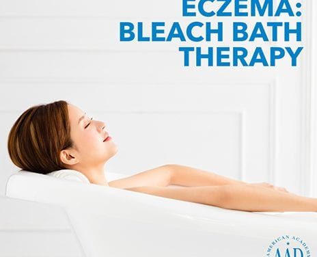 How to Use Bleach Baths to Help Manage Eczema Flares