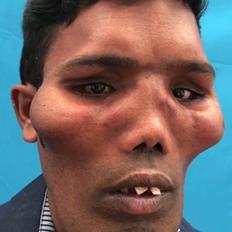 'Lion Faced' Man Transformed as Surgeons Rebuild His Face in Life-Changing Operation