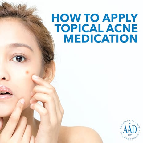 Dermatologists Urge Consumers to Treat Acne Early