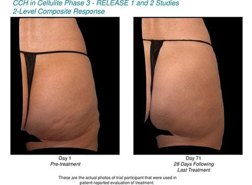 Endo Reports Positive Results from CCH Use to Treat Cellulite