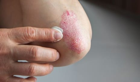 Why Dermatologists Are So Excited for This New Psoriasis Drug